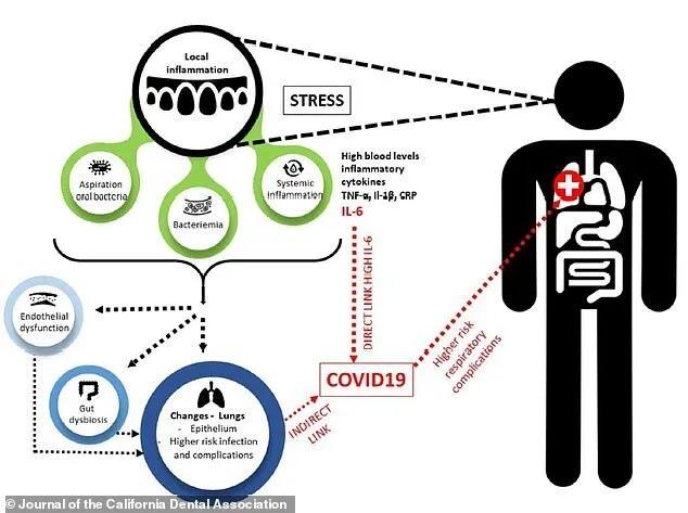Як захворювання ясен позначаються на здоров'ї пацієнтів з коронавірусів