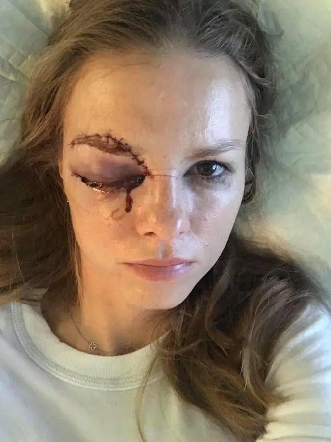 Барбора Жачикова в больнице